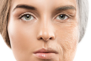 process of aging, dead cells, fresh skin