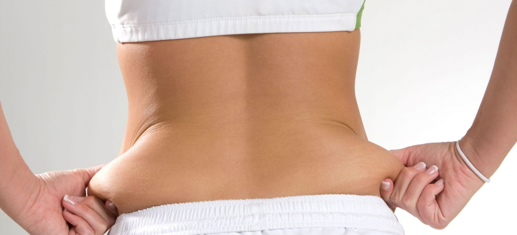 Why to Reduce Weight And How Obesity Leads To Skin Problems