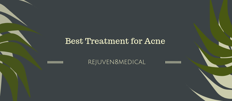 Which Treatment Is Best for Acne?