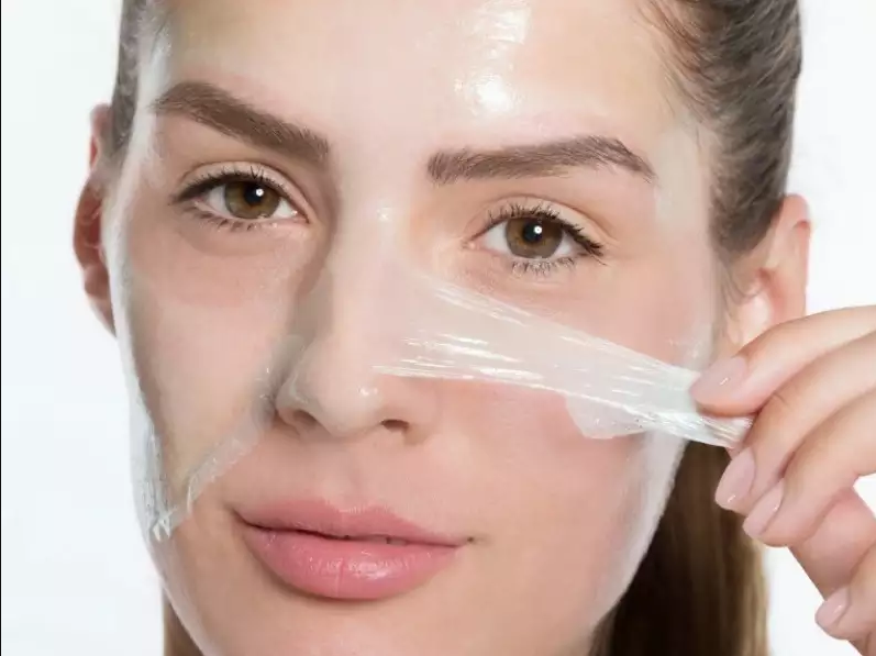 Reverse facial Aging Signs from Chemical Peel