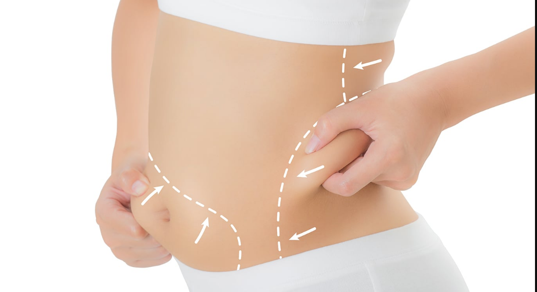 Trim And tone your fat with trusculpt fat reduction