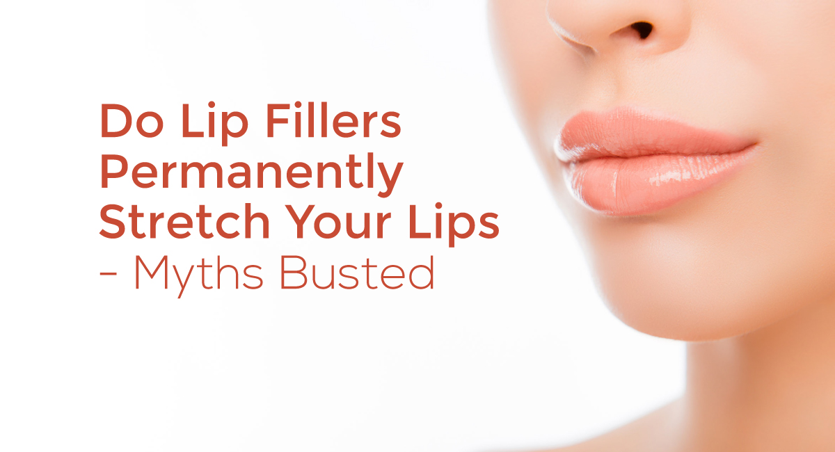 Do Lip Fillers Permanently Stretch Your Lips- Myths Busted