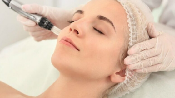 Everything you Need to Know About Micro needling