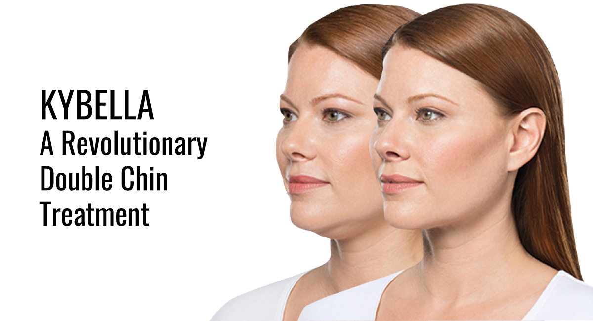 Kybella - A Revolutionary Double Chin Treatment