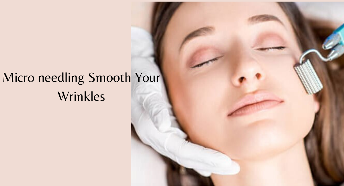 How Microneedling Smooth Your Wrinkles