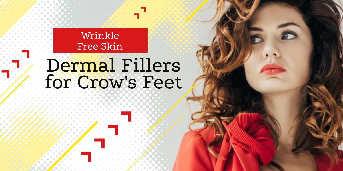 Dermal Fillers for Crow's Feet - It's Time To Revive Your Wrinkle Free Skin