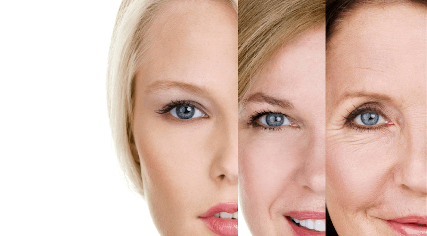 Why Dermal Fillers are a Great Addition to Your Anti-Aging Regimen