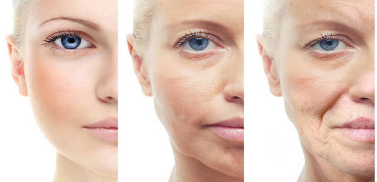 How to Reduce Skin Laxity Without Going Through Any Scar or Incisions?