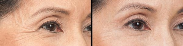 From Crow's Feet to Forehead Lines - Here's How Aesthetic Treatment Center Can Help You Revive Your Looks