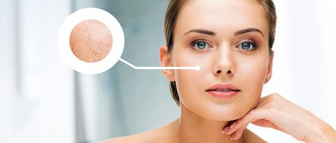 How to Get Rid of Dehydrated, Cracked Skin in Summer? Let's Get You the Solution