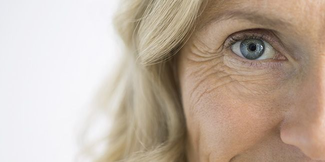 How Botox Helps in Minimizing Under Eye Circles and Crow's Feet?